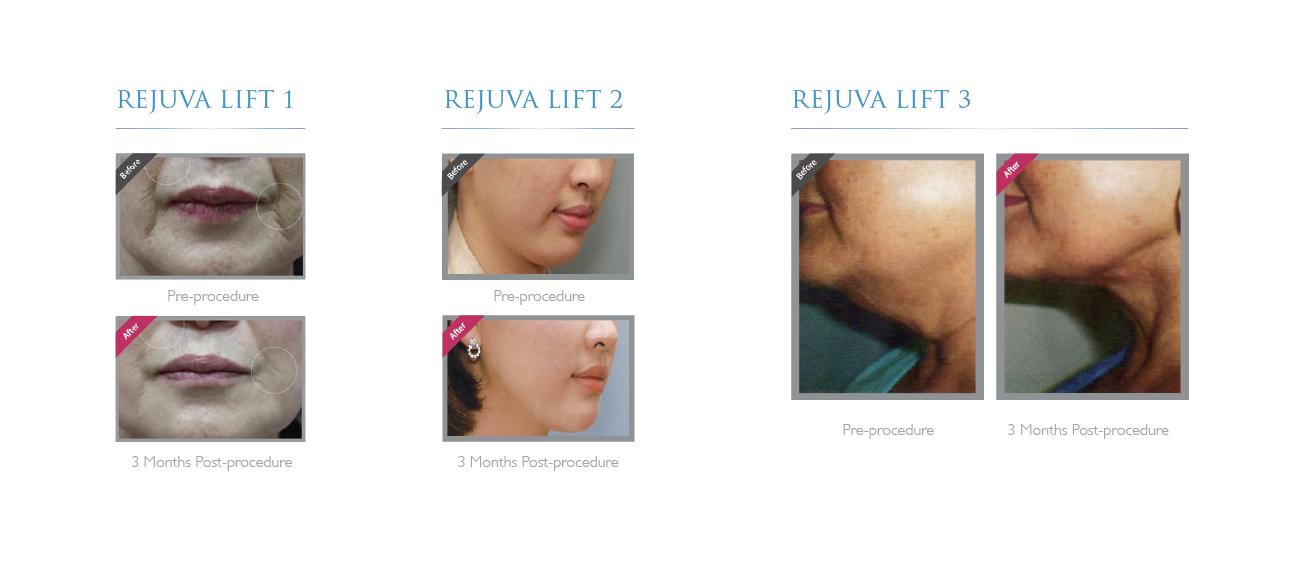 Elionce, PDO Thread Treatment, PDO Training Course, PDO Thread Face Lift